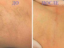 Шугаринг и ваксинг — Предложение услуг в Москве
